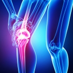 Knee Treatment With Physical Therapy