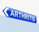 Physical Therapy For Arthritis Pain in Howard Beach, Queens