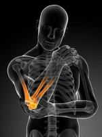 Tennis Elbow, Golf Elbow - Physical Therapy